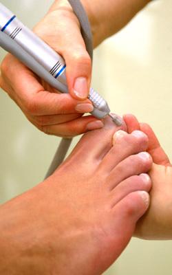 Darstellung der medizinischen Fußpflege